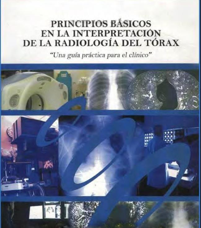 Principios Básicos en la interpretación de la Radiología del Tórax