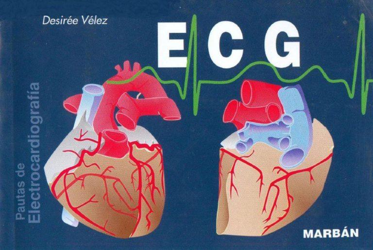 ELECTROCARDIOGRAMA INTERPRETACIÓN (EKG)