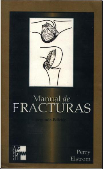 Manual de fracturas (Perry Elstrom)